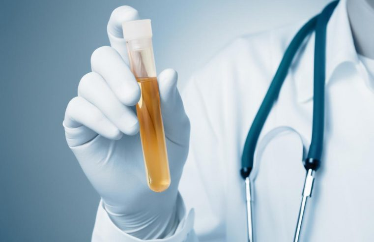 How To Fix The Urinalysis And Where To Buy A Synthetic Replacement