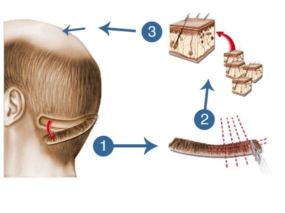 How To Get Ideal Hair Transplant Surgery In Jaipur?
