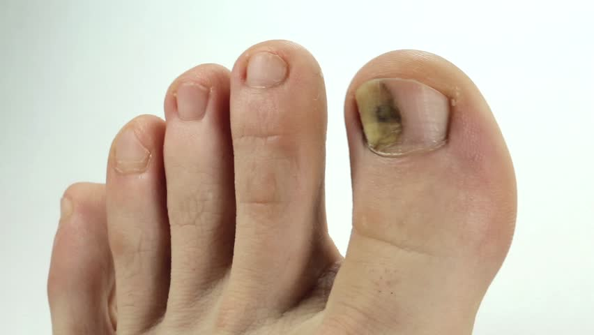 Know everything about fungal nail infection