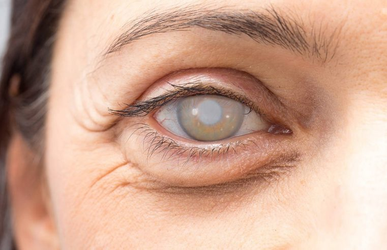 5 Eye Problem Symptoms You Might Be Ignoring