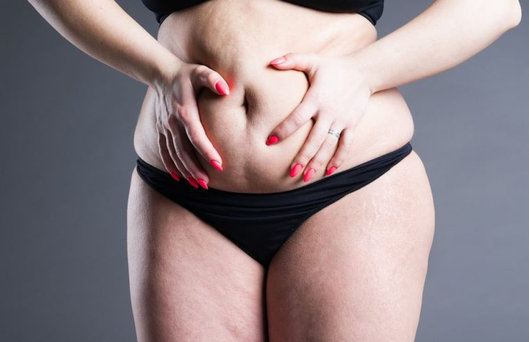 How to Eliminate the Excess Fat and Skin in the Tummy