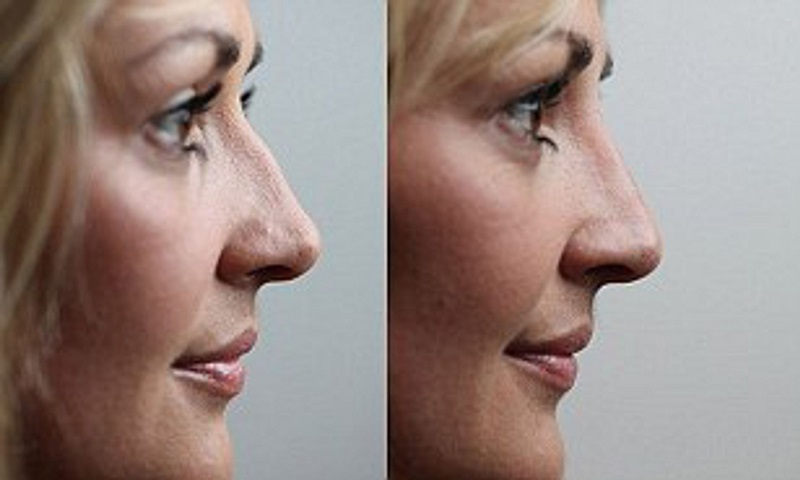 Five secrets to Speed Up your Rhinoplasty Recovery