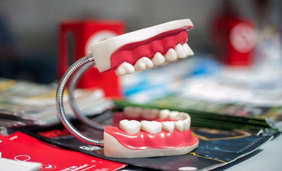 The Five Most Common Dental Problems