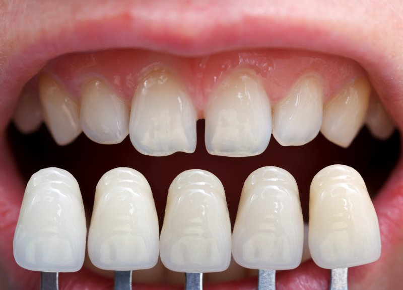Here Is What You Need to Know Before Getting Veneers