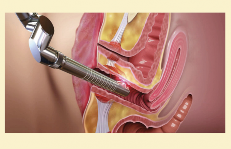 Benefits of Non-Surgical Vaginal Rejuvenation