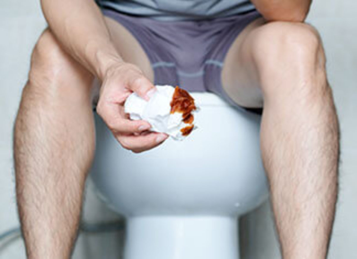 Highly Reliable and Effective Solution to Hemorrhoid