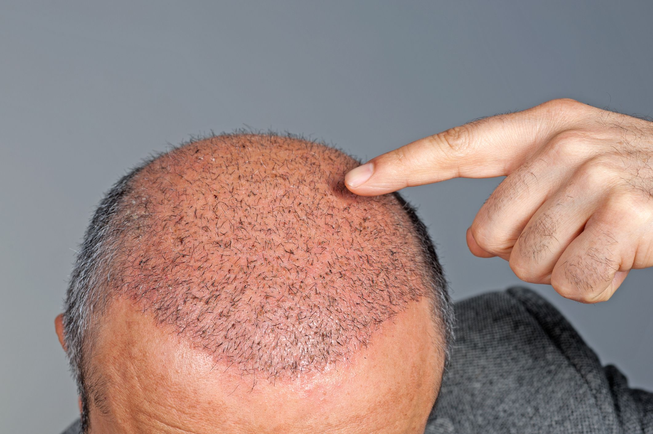Longevity of the Hair Transplant: Your Options Now