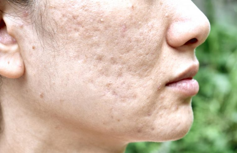 Effective Treatment to Reduce the Appearance of Your Acne Scars in Fort Worth, TX
