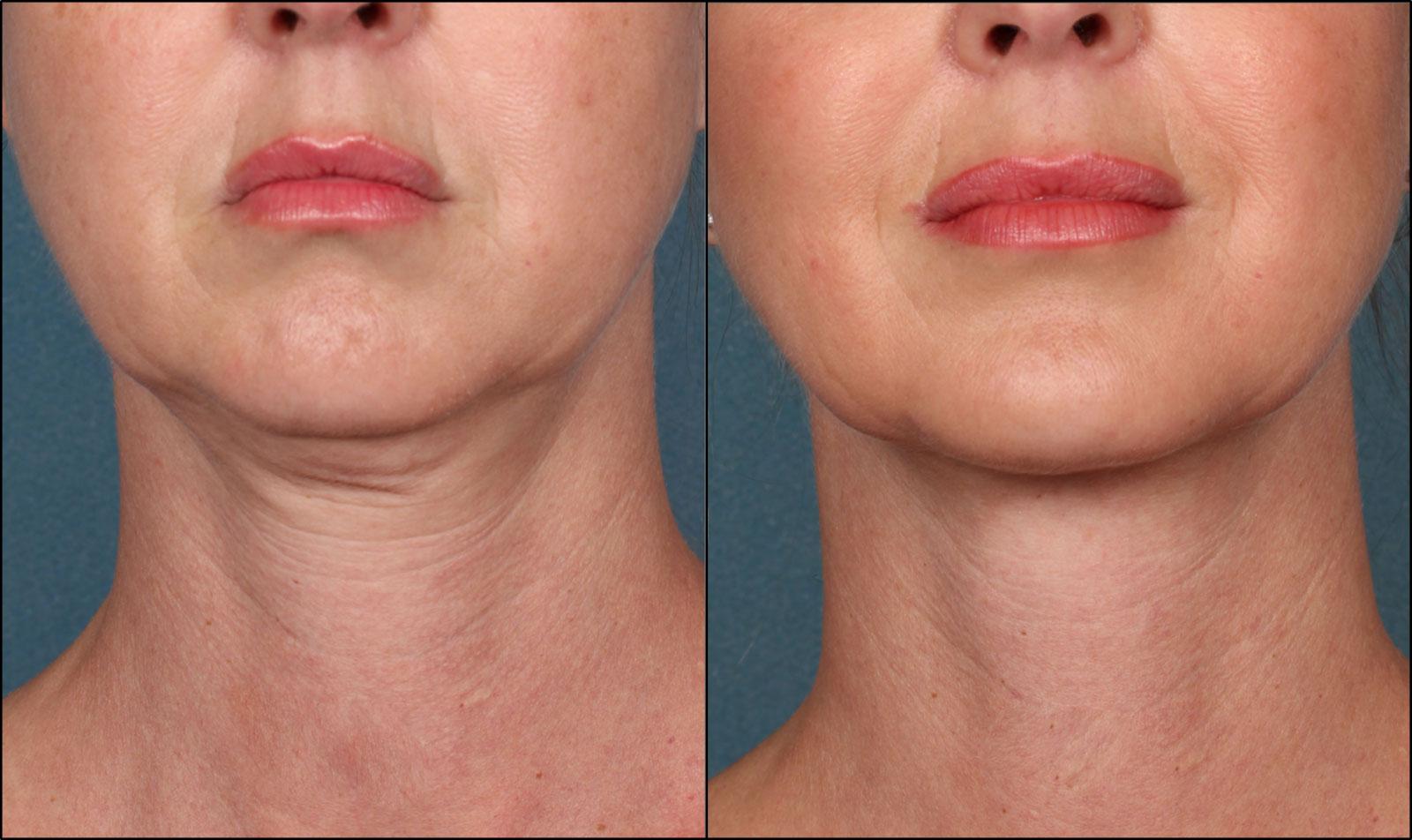 8 Benefits of Non-Surgical Skin Tightening Procedures