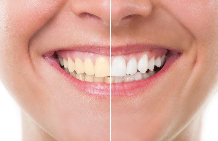 Cosmetic Dentistry in Florida