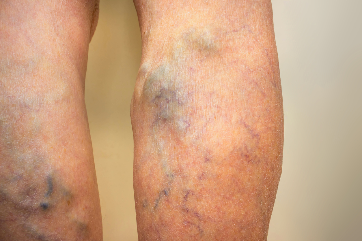 Hidden Facts about Deep Vein Thrombosis (DVT)