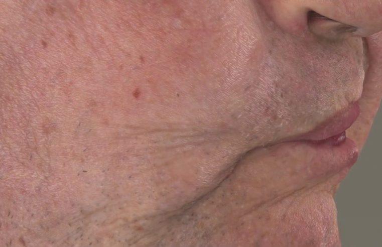 Facial Reconstruction Solution for Skin Deformation