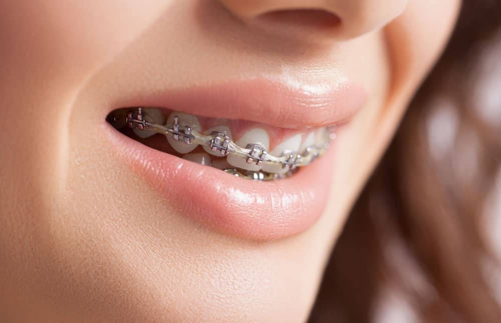 All You Need To Know About Dental Braces