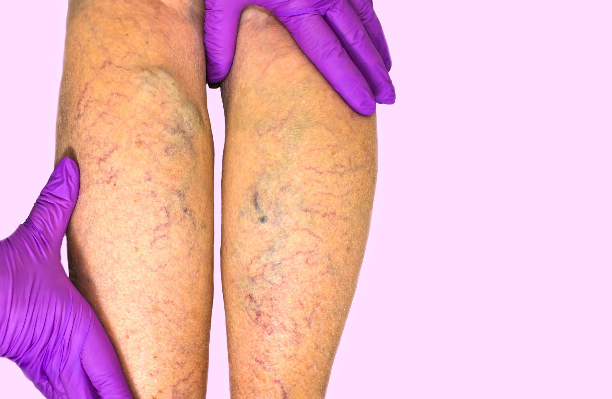 Peripheral Arterial Disease: Why it is Critical to See a Vein Specialist