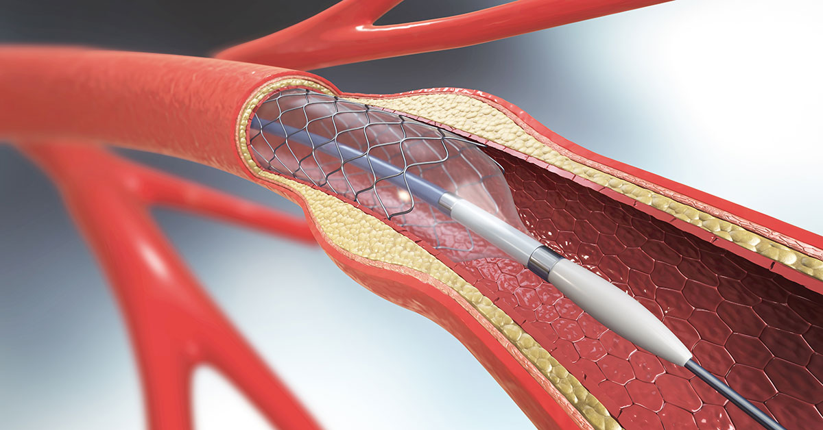 Prevent Your Risk of Stroke with Carotid Stenting in Evergreen Park, IL