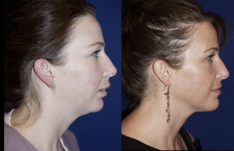The Benefits of Chin Augmentation