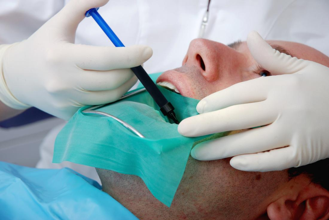 Forget About the Drilling, Here Are the Benefits of Root Canal Treatment
