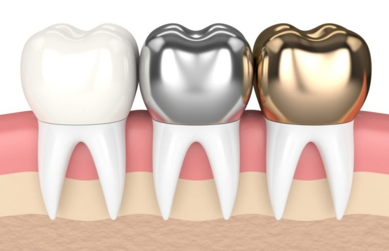 What to Consider When Choosing Dental Crowns