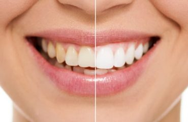 Life-changing Benefits of Teeth Whitening