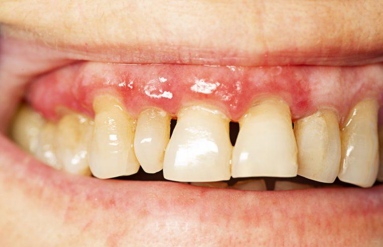 Comprehensive Gum Treatments in Campbell, CA