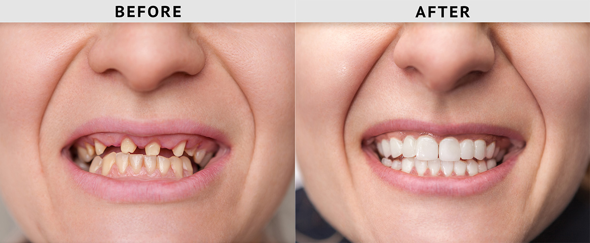Teeth Replacement Procedures to Help Redefine Your Feeding Habits and Laughter