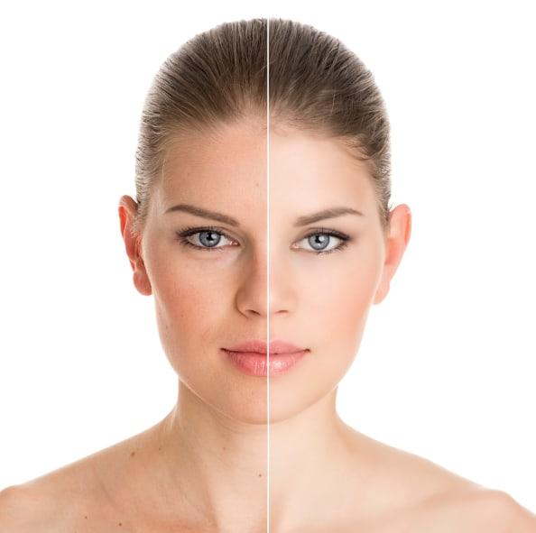 Three Dimensions of Skin Rejuvenation