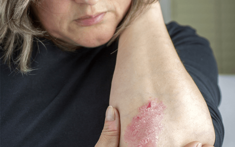 How to cope with psoriasis