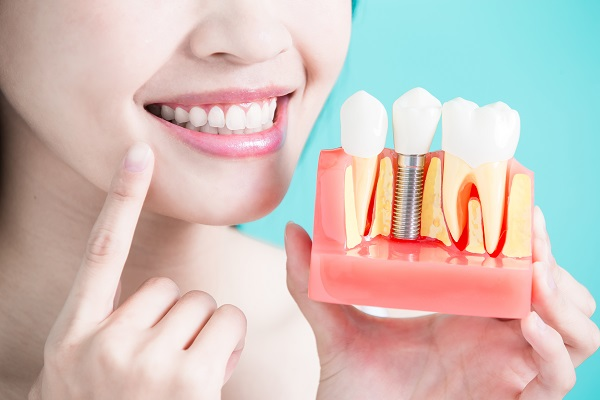 Implant-Supported Dentures: Viable Teeth Replacement for a Missing Row of Teeth