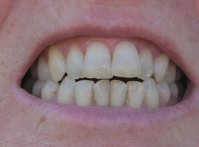 What Happens During Tooth-Colored Enamel Restoration