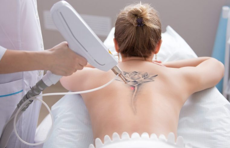 5 Least Known Tips to Enhance Your Tattoo Removal