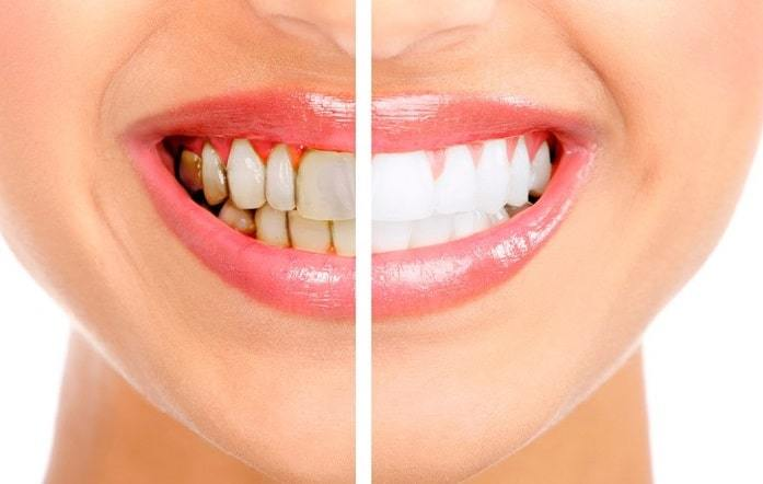 What are the Best Teeth Whitening Strips?