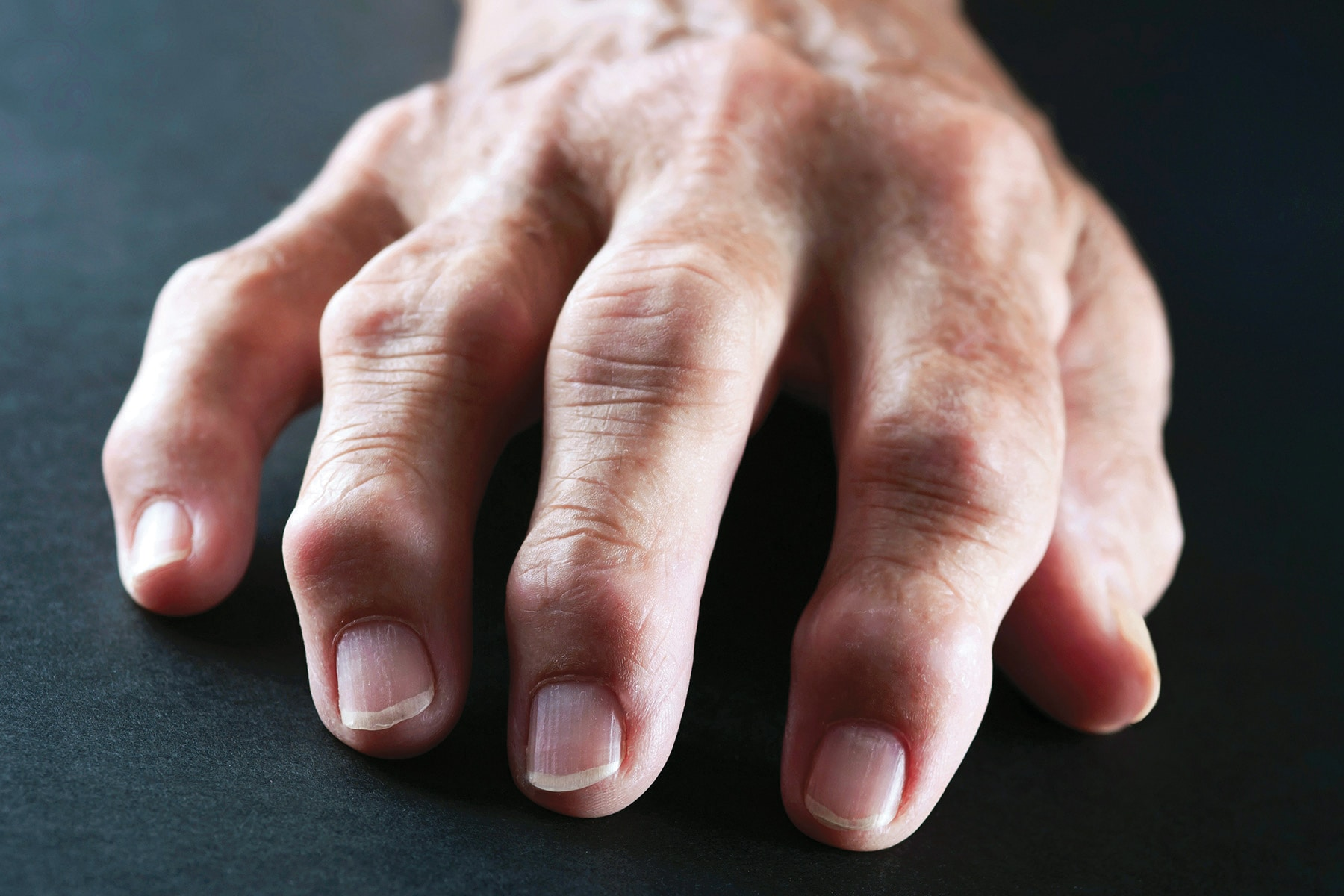 Types of Arthritis and Ways to Manage the Condition