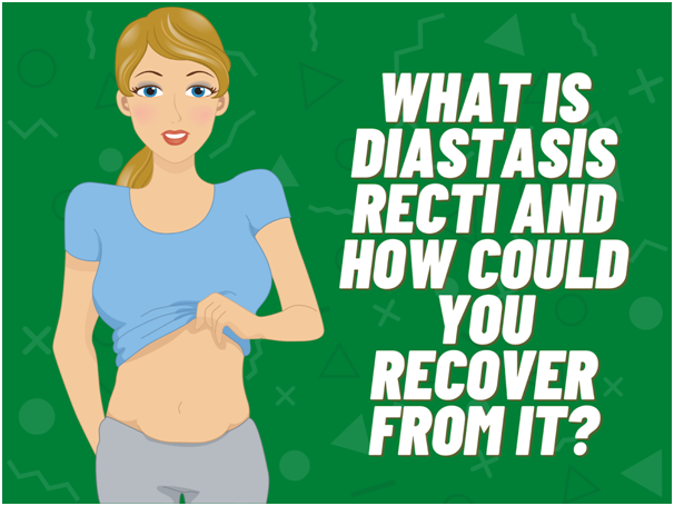What is Diastasis Recti and How Could You Recover From It?