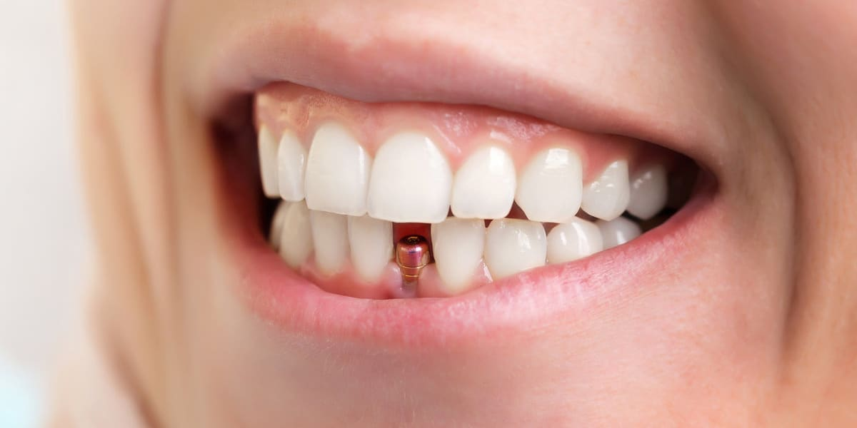 Dental Implants Procedure, Types, and Likely Problems After Treatment