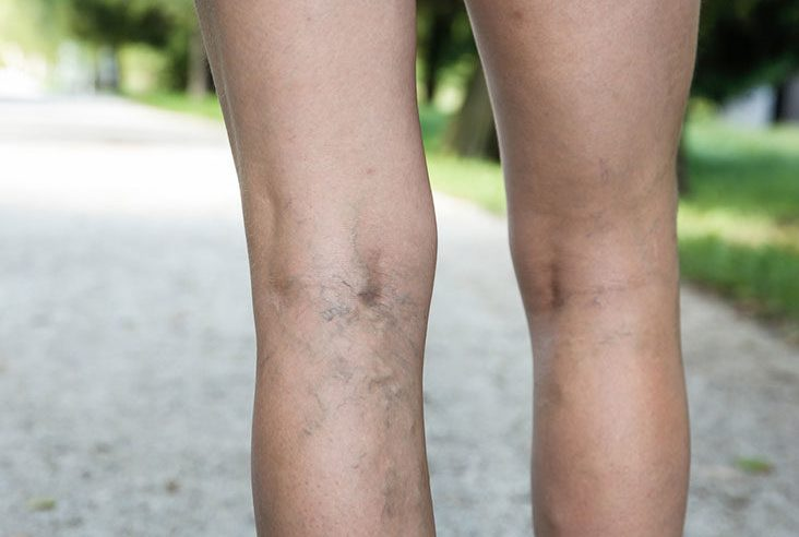 Varicose Veins, What You Need to Know