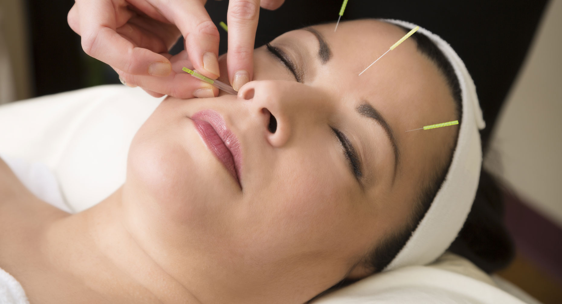 HOW IS ACUPUNCTURE SUITABLE TO GAIN RELIEF FROM HEADACHES?