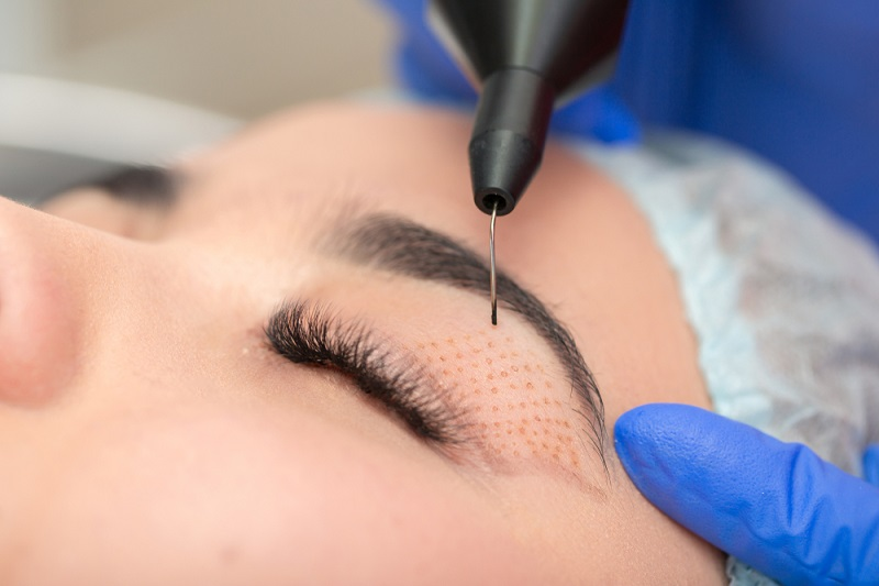 How Eyelid Surgery Improves Your Appearance