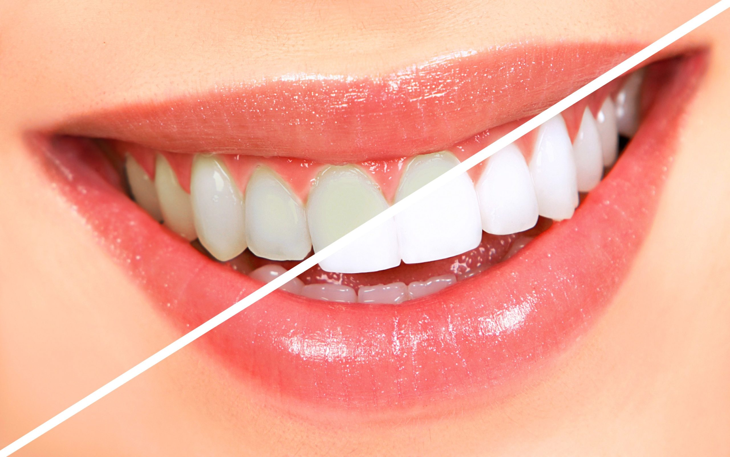 Essential Facts You Should Know Before Opting for Teeth Whitening