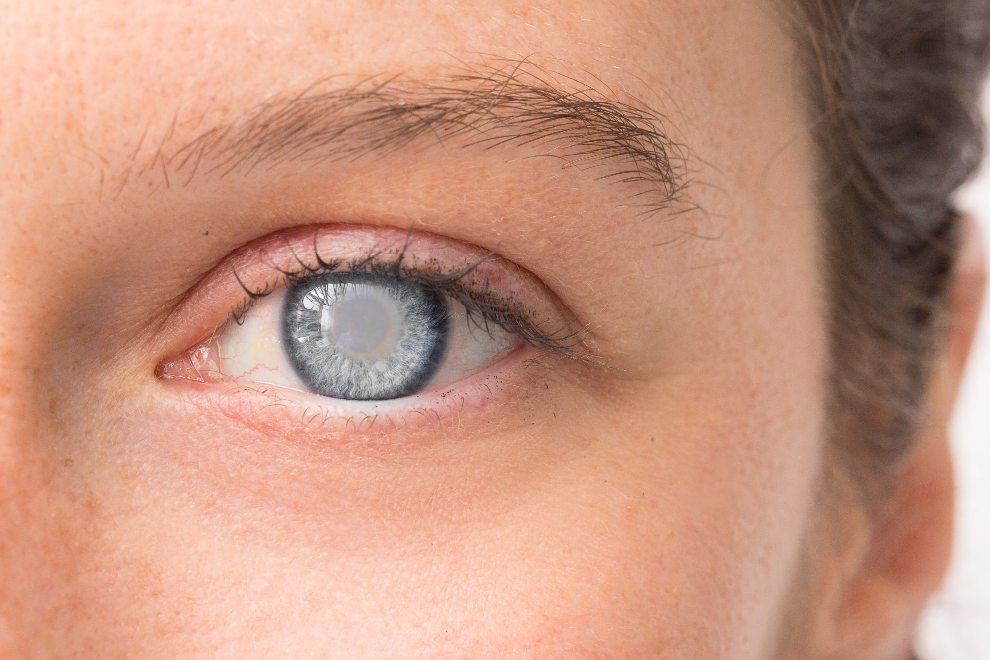 Understanding Cataracts: Causes, and Treatment Methods