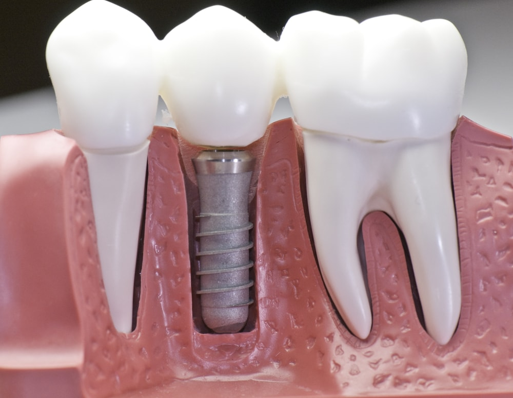 Fill Any Tooth Gaps and Enhance Your Smile with Implant Dentistry in Frisco