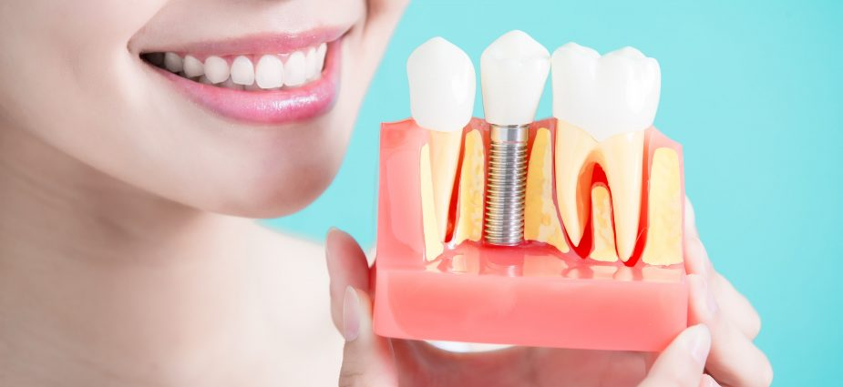 Interested in Getting Dental Implants? Check This Guide!